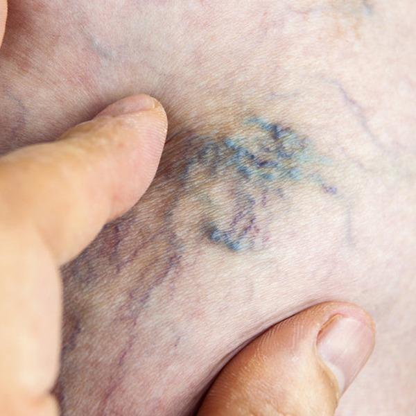 Sclerotherapy, Leg Veins, Spider Veins, Varicose Veins