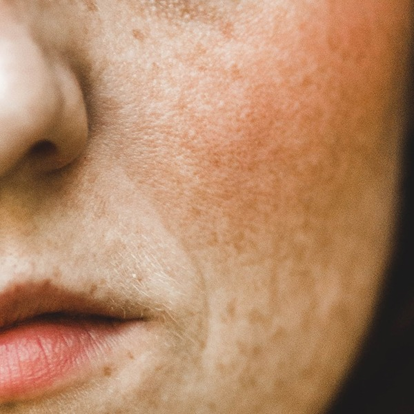 Facial Redness and Rosacea