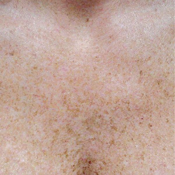 Skin Pigmentation, Age Spots