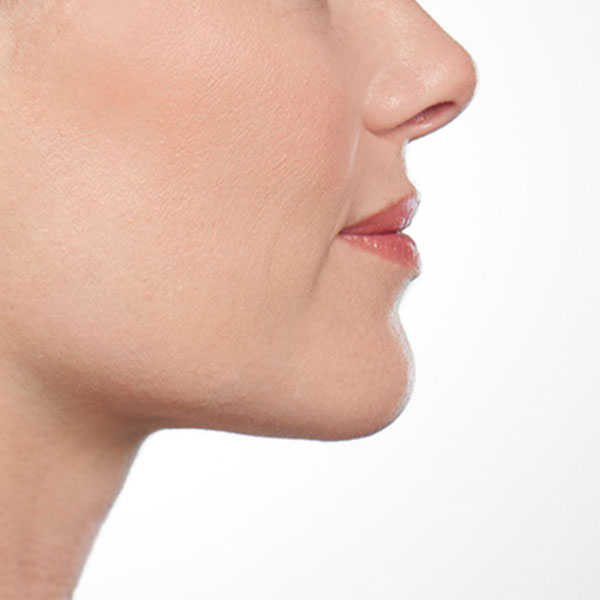 Belkyra Double Chin Reduction