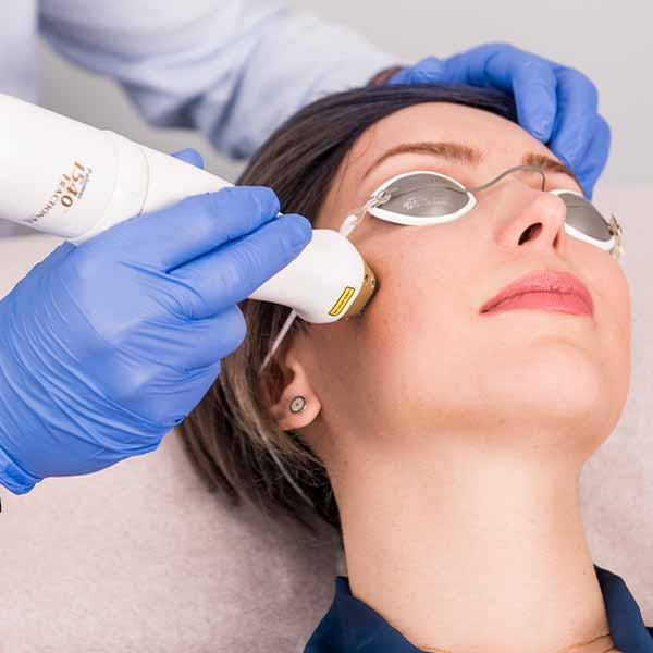 Renewal, Anti-Aging Treatments, Anti-Aging, Fractional 1540 Laser