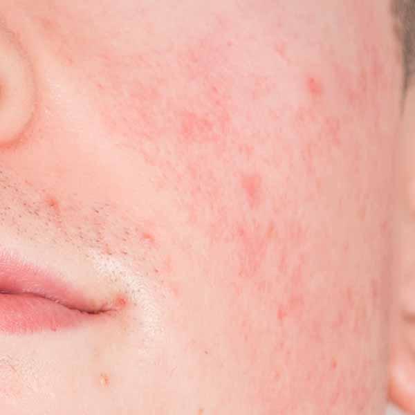Acne, Acne Treatments, Papillon Bleu Aesthetics Coquitlam