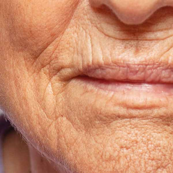 Wrinkles, Anti-Aging Treatment