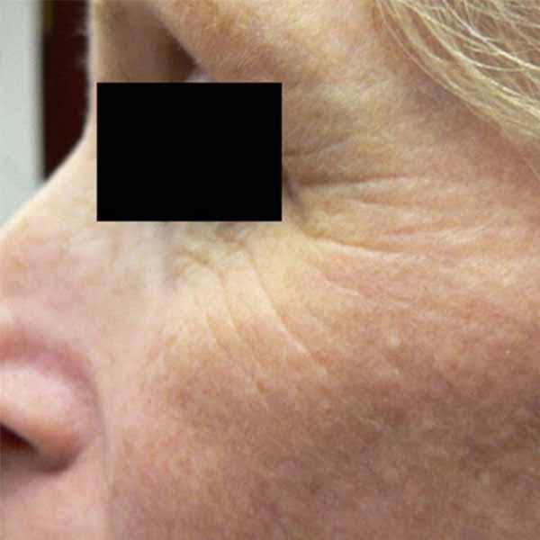 Fractional Skin Renewal for Anti-Aging