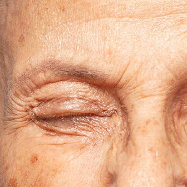 Subcison, Subcision Treatment, Anti-Aging Treatment